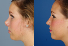 Photo of HOW TO KNOW THAT YOU MIGHT NEED A REVISION RHINOPLASTY?