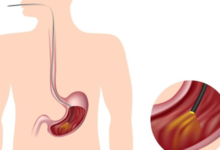 Photo of GI Endoscopy: Why is It Done?