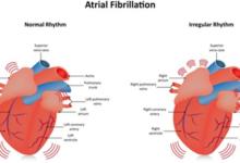 Photo of Atrial fibrillation – Symptoms and treatment