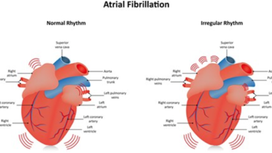 Photo of Atrial fibrillation – Symptoms and treatment