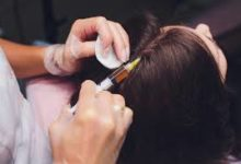 Photo of Essential Information on benefits of the hair transplant