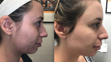 Photo of Microneedling with PRP: Stop aging with facial rejuvenation
