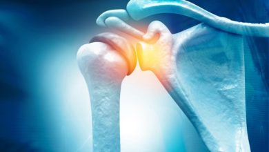Photo of Frozen Shoulder: Symptoms, Causes, And Treatment