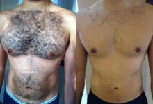 Photo of Best and cheapest laser hair removal for men