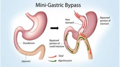 Photo of What to choose between mini bypass and gastric bypass?
